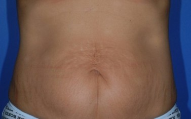 Tummy Tuck 1 - Before