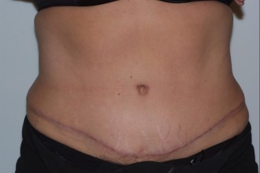 abdominoplasty4,front,after
