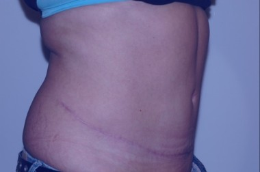 abdominoplasty5,oblique,after
