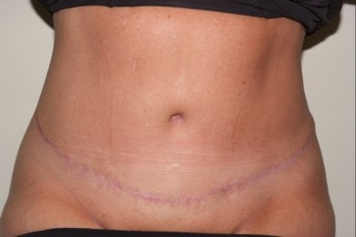 abdominoplasty6,front,after