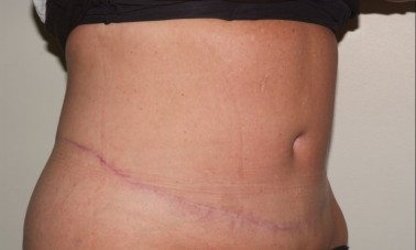 abdominoplasty6,oblique,after