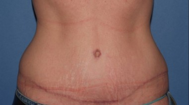 abdominoplasty7,front,after