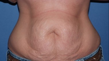 abdominoplasty7,front,before