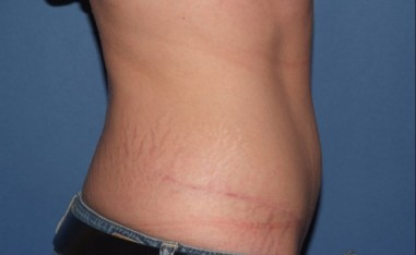 abdominoplasty7,side,after