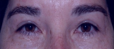 blepharoplasty10,after,front