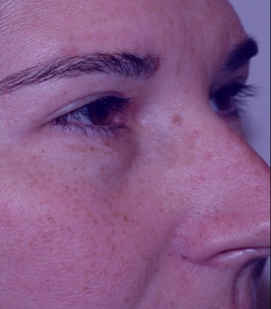 blepharoplasty10,after,oblique