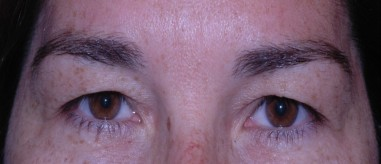 blepharoplasty10,before,front
