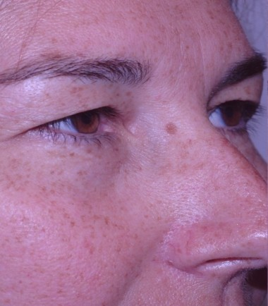 blepharoplasty10,before,oblique