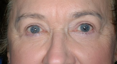 blepharoplasty1,after,front