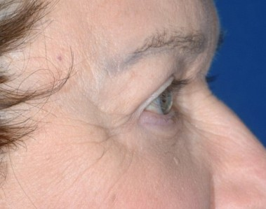 blepharoplasty1,after,side