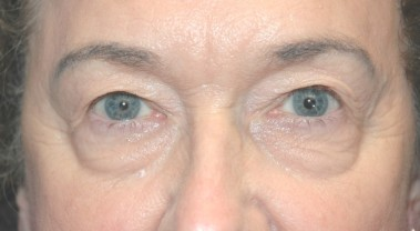 blepharoplasty1,before,front