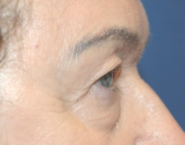 blepharoplasty1,before,side