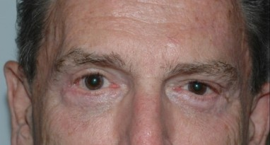 blepharoplasty2,after,front