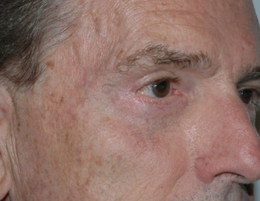 blepharoplasty2,after,oblique