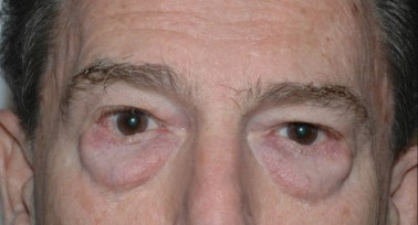 blepharoplasty2,before,front
