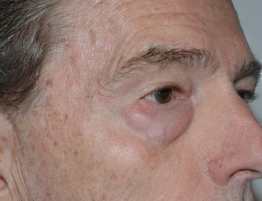 blepharoplasty2,before,oblique