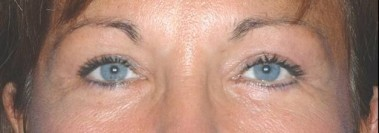 blepharoplasty3,after,front