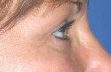 blepharoplasty3,after,side