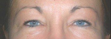 blepharoplasty3,before,front