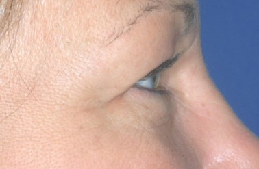 blepharoplasty3,before,side