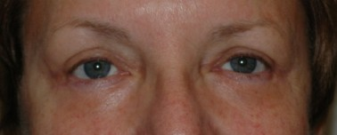 blepharoplasty4,after,front