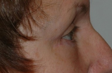 blepharoplasty4,after,side