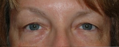 blepharoplasty4,before,front