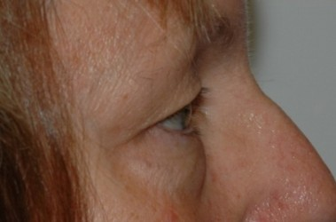 blepharoplasty4,before,side