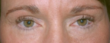 blepharoplasty5,after,front