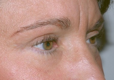 blepharoplasty5,after,oblique