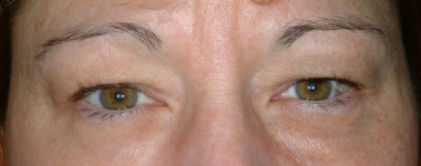 blepharoplasty5,before,front
