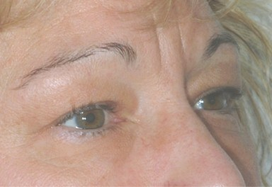 blepharoplasty5,before,oblique