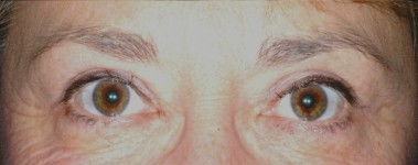 blepharoplasty6,after,front