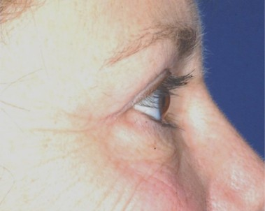 blepharoplasty6,after,side