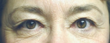 blepharoplasty6,before,front