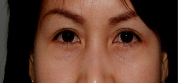 blepharoplasty8,after,front