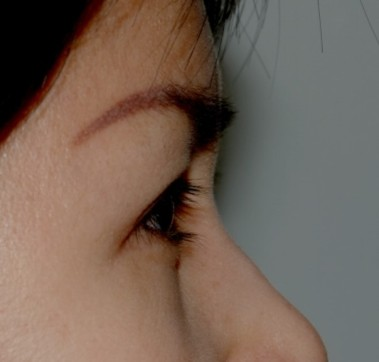 blepharoplasty8,after,side