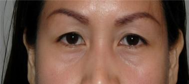 blepharoplasty8,before,front