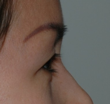 blepharoplasty8,before,side