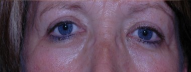 blepharoplasty9,after,front