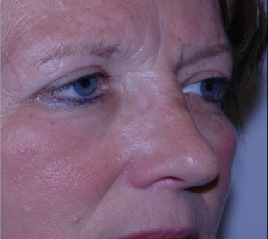blepharoplasty9,after,oblique