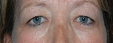 blepharoplasty9,before,front