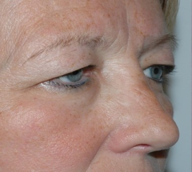 blepharoplasty9,before,oblique