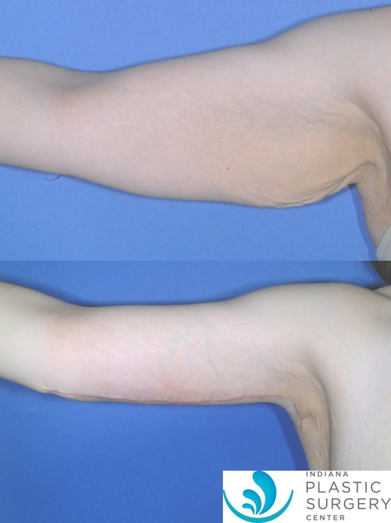 brachioplasty,before and after1