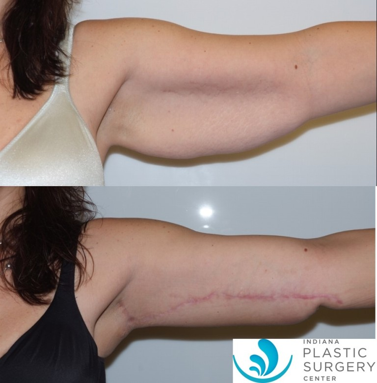 brachioplasty,before and after4