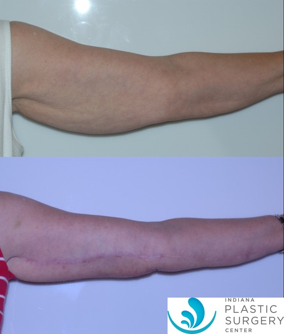 brachioplasty,before and after5