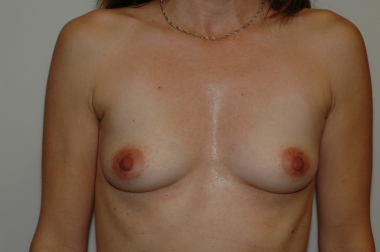 breast aug 1 front before