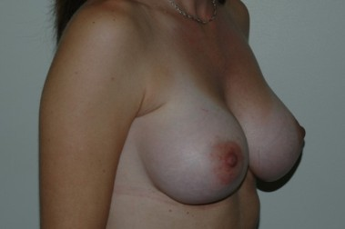 breast aug 1 oblique after