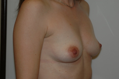 breast aug 1 oblique before
