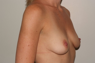 breast aug 10,oblique,before